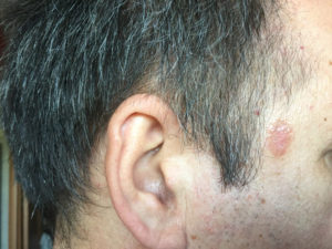 эпителизация раны после удаления кератомы