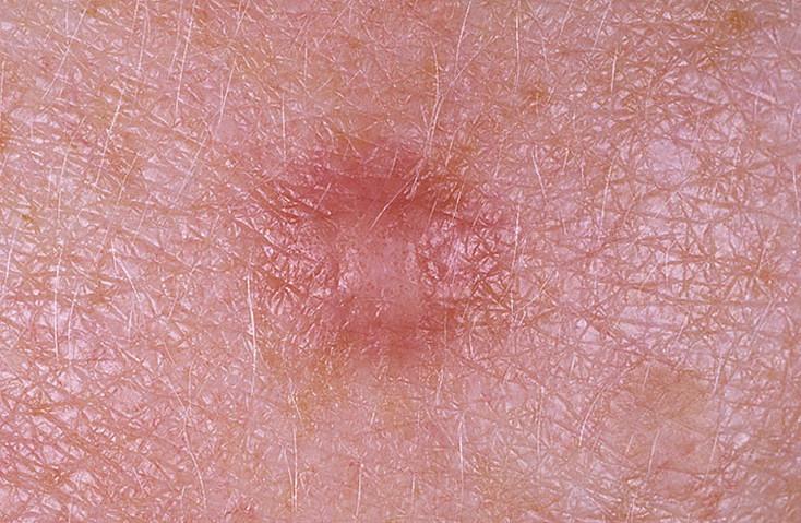 http://dermatoscopy36.ru/wp-content/uploads/df1.jpg