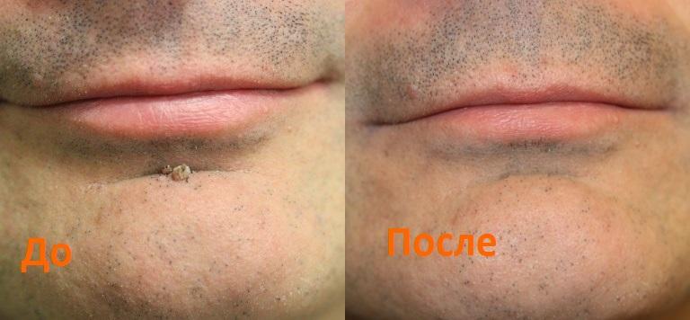 http://dermatoscopy36.ru/wp-content/uploads/nova-do-posle03-1.jpg